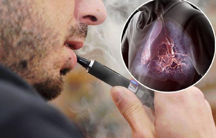 Электрон сигаретанинг хавфи нимада?