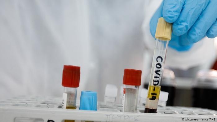 +27: Uchta hududda aholi orasida koronavirus aniqlandi