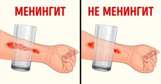 Toshkentga meningit kasalligi Rossiyadan kirib kelgan. Undan qanday saqlanish mumkin?