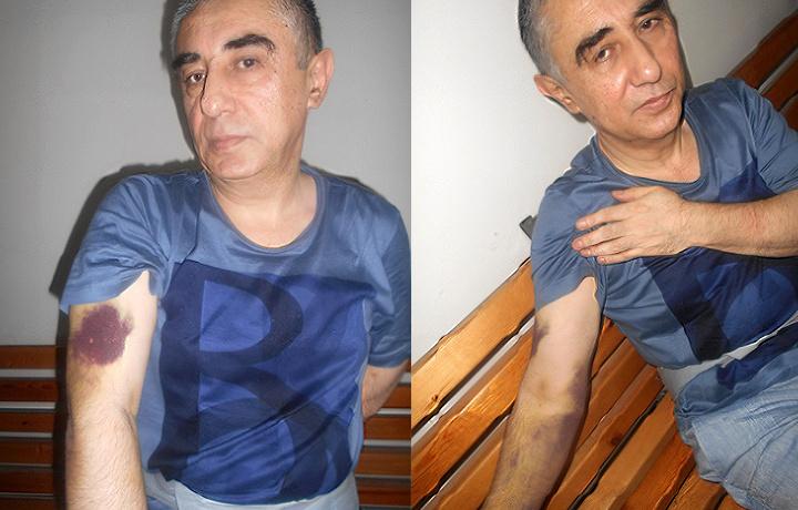 В ГУВД Ташкента прокомментировали информацию о пытках предпринимателя Умарова